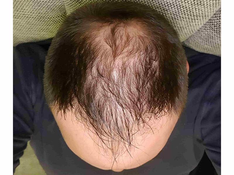 Šta je androgena alopecija?
