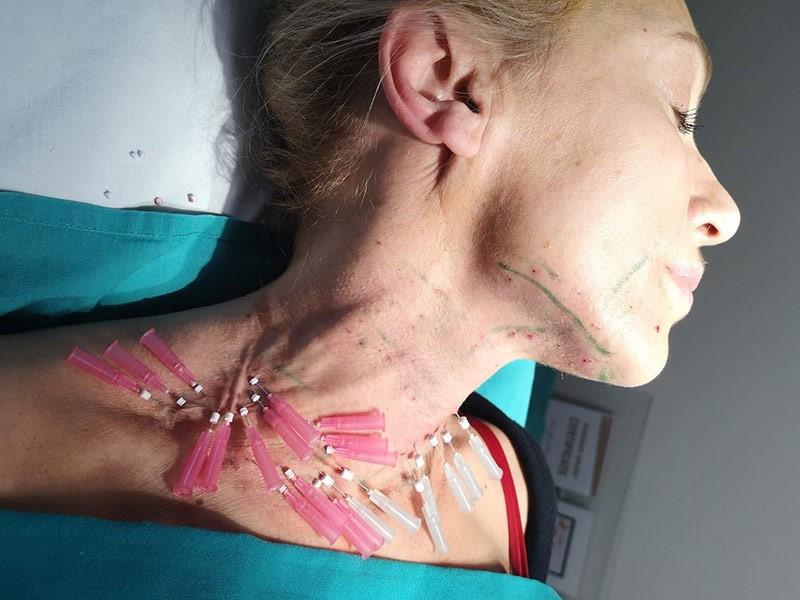 Šta su mezoniti i po čemu se izdvaja ovaj metod zatezanja lica?