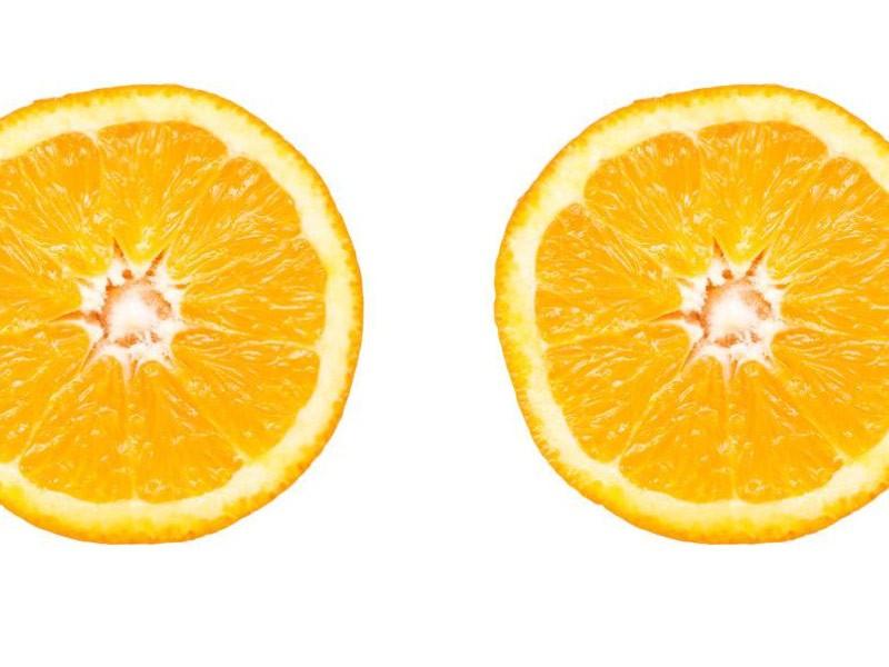 Zašto je vitamin C važan za lepotu?
