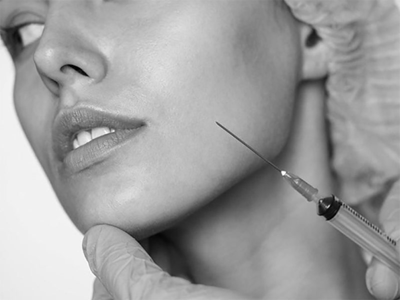 Mlađi i svežiji izgled uz sitne estetske korekcije za podmlađivanje lica
