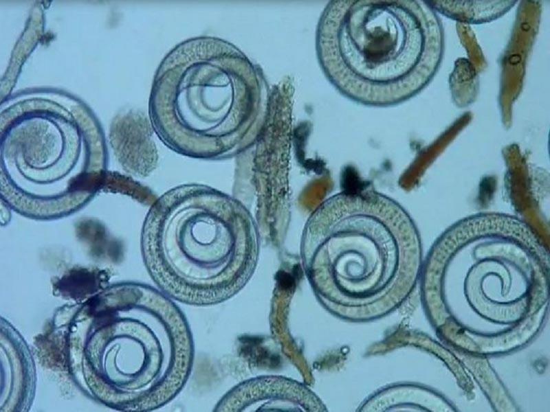 Trihineloza opasna parazitska bolest koju prenose glodari