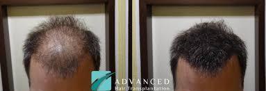 Metode transplantacije i uzroci gubitka kose