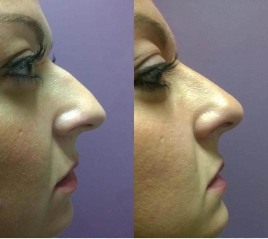 Korekcija nosa filerima ženski nos