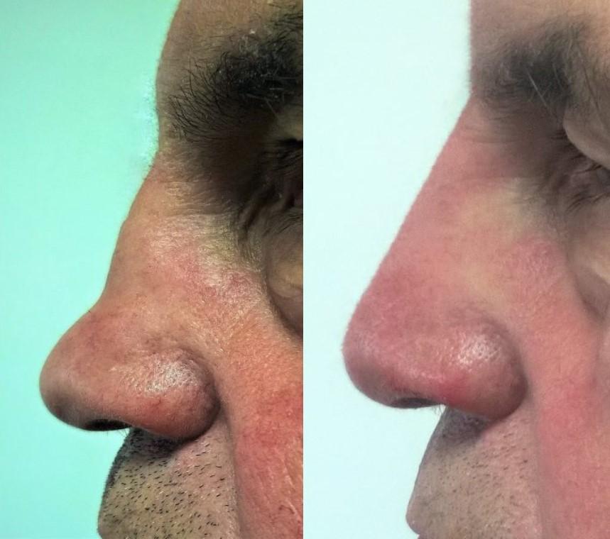 Korekcija nosa filerima muški  nos