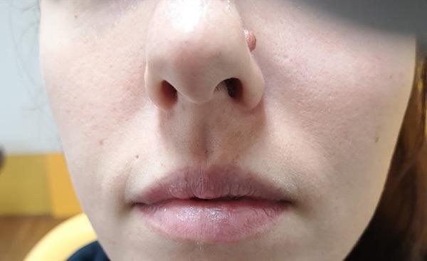 Mladez na nosu pre