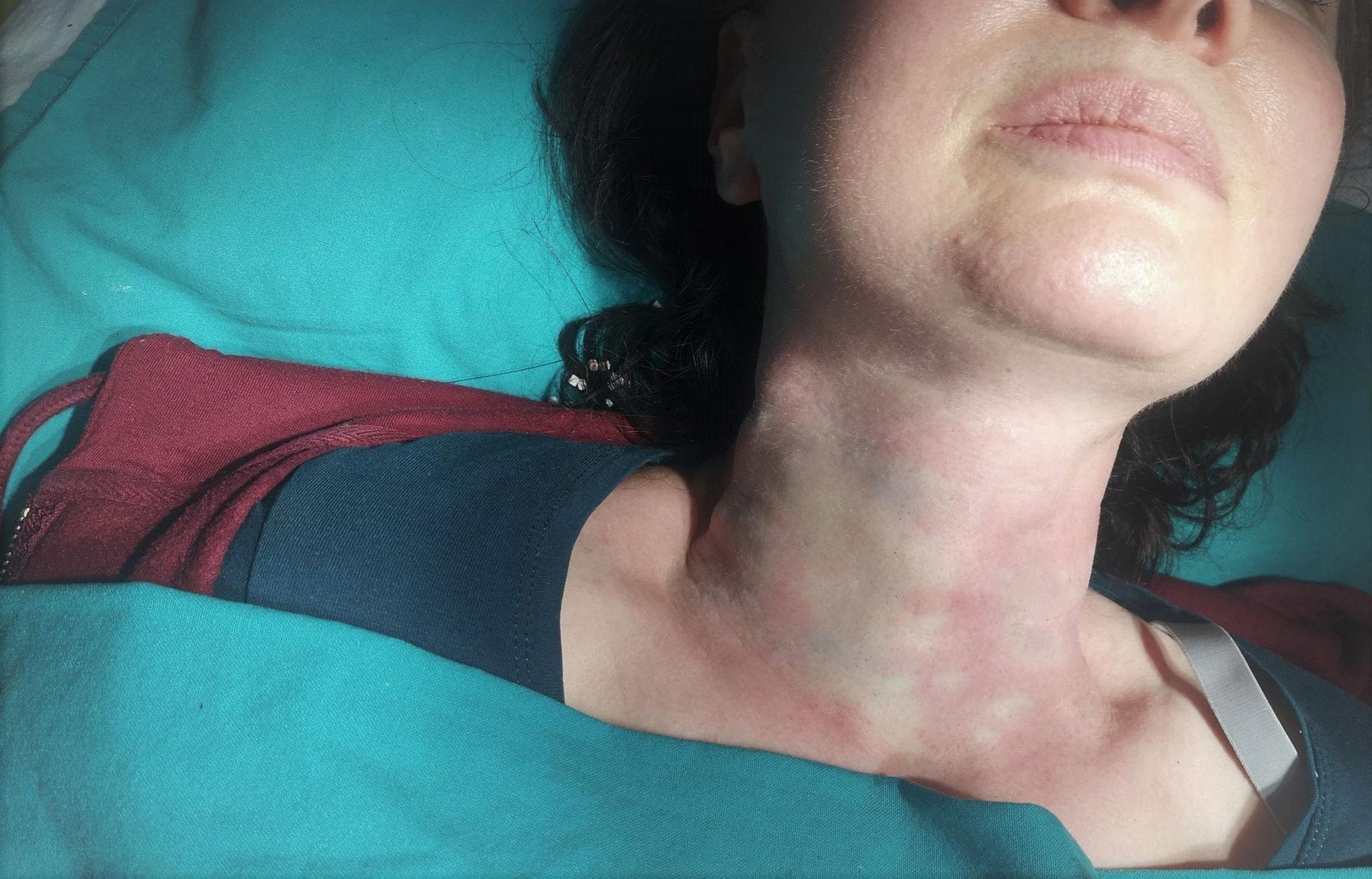 Mezoniti na vratu posle intervencije