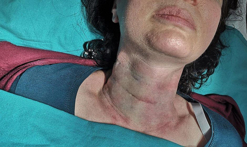 Mezoniti na vratu pre intervencije