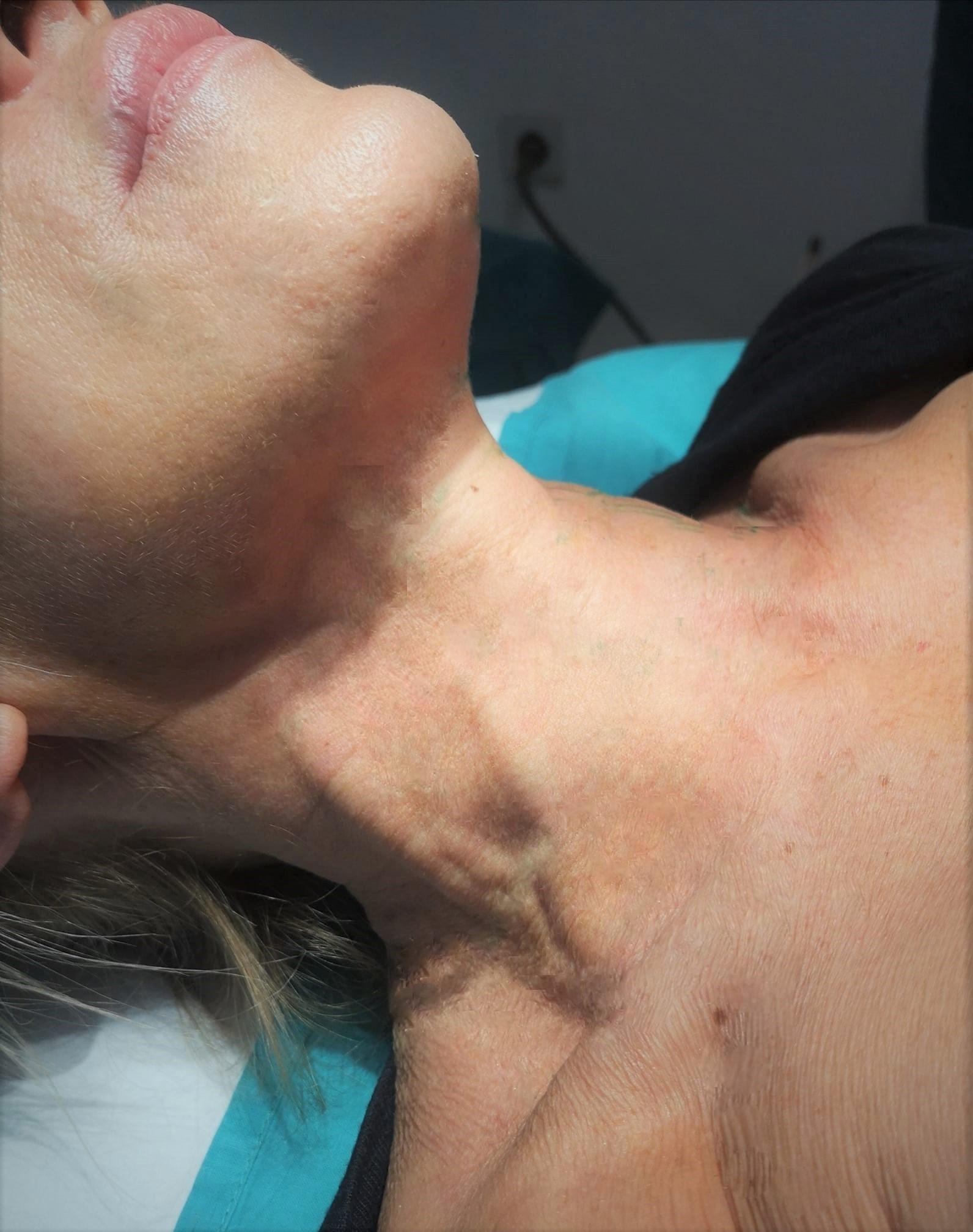 Koža mezoniti